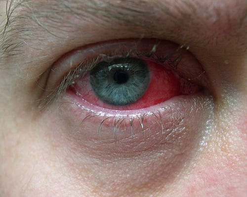 If your eyes are ever this red you d better come in to see us at