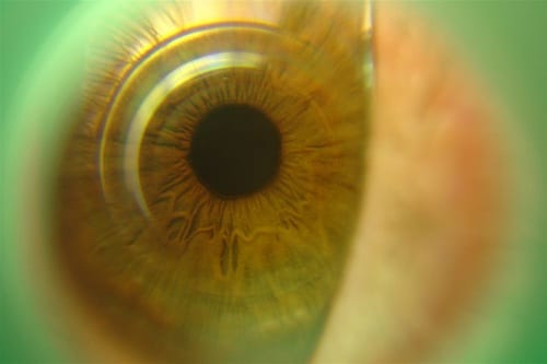 Can I Wear Contact Lens if I Have Astigmatism?